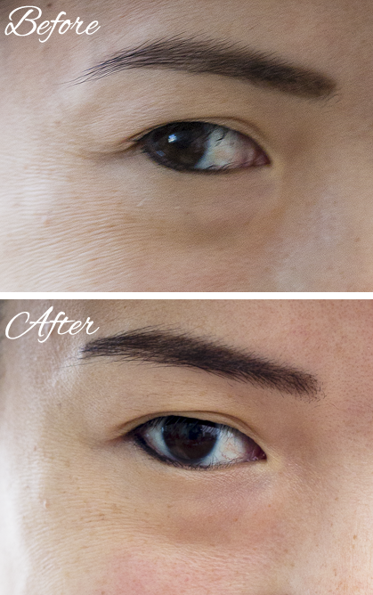 Rodan + Fields Acute and Redefine Skincare: Before and After Results